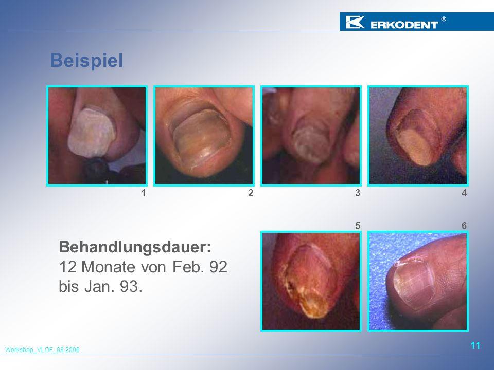 Workshop_VLOF_08.2006 11 Beispiel Behandlungsdauer: 12 Monate von Feb. 92 bis Jan. 93. 1 Bild 4 234 65