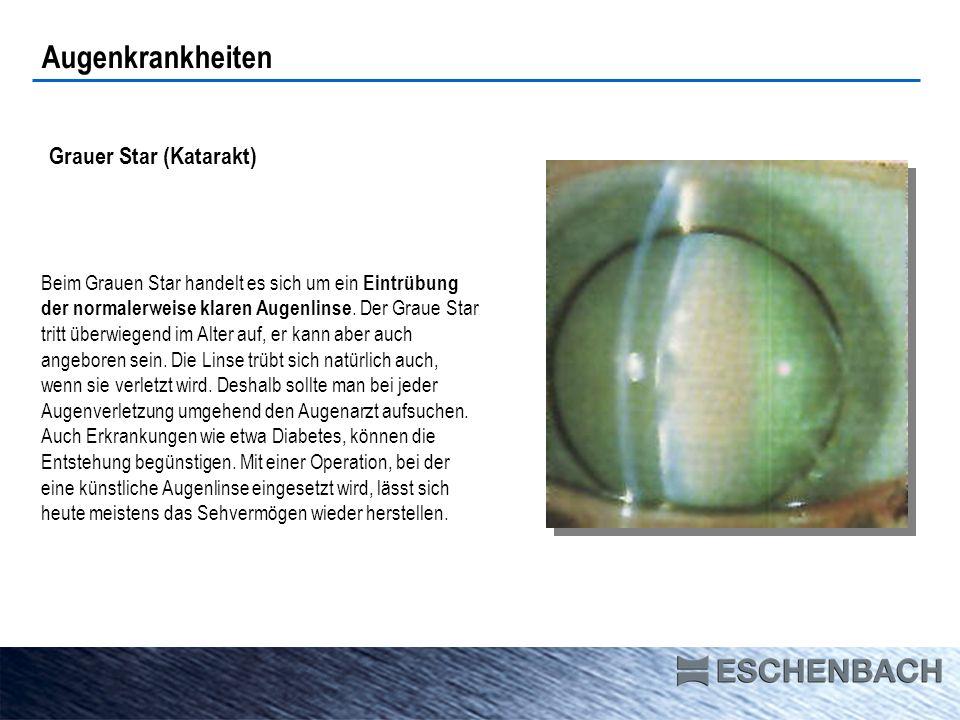Seheindruck Grauer Star (Katarakt) Augenkrankheiten