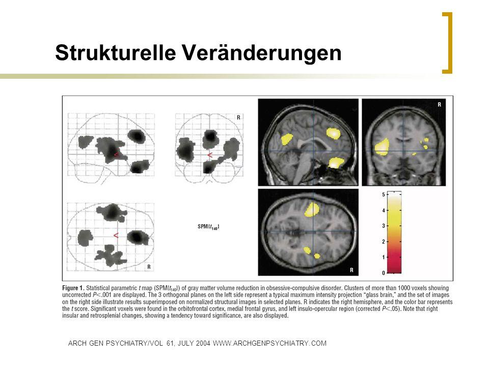 Strukturelle Veränderungen ARCH GEN PSYCHIATRY/VOL 61, JULY 2004 WWW.ARCHGENPSYCHIATRY.COM