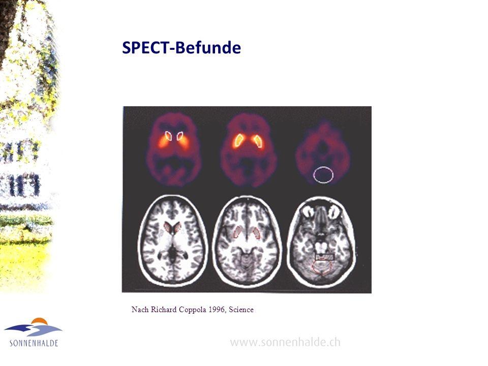Ursachen Dopamin-Stoffwechsel gestört (Dopamin ist wesentlich für Informationsverarbeitung und Bewegungsabläufe) Hinweise: Auftreten von ähnlichen Sym