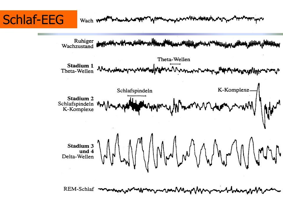 Schlaf-EEG