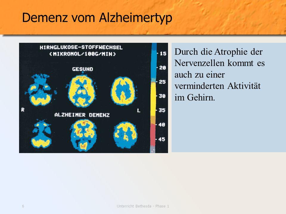 Unterricht Bethesda - Phase 16 Demenz vom Alzheimertyp Durch die Atrophie der Nervenzellen kommt es auch zu einer verminderten Aktivität im Gehirn.