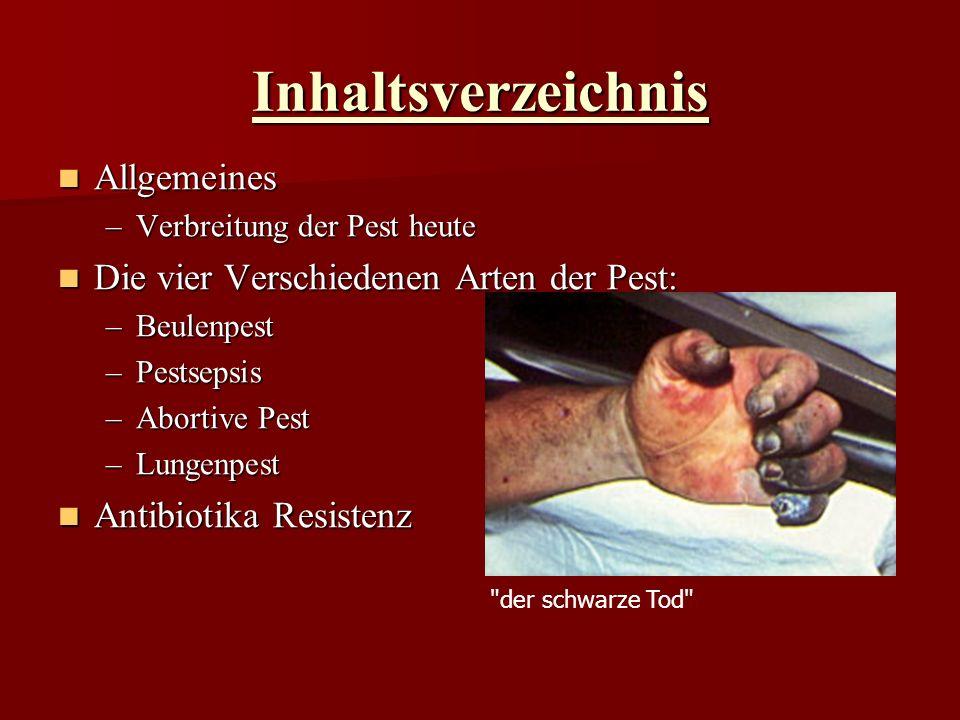 Inhaltsverzeichnis Allgemeines Allgemeines –Verbreitung der Pest heute Die vier Verschiedenen Arten der Pest: Die vier Verschiedenen Arten der Pest: –