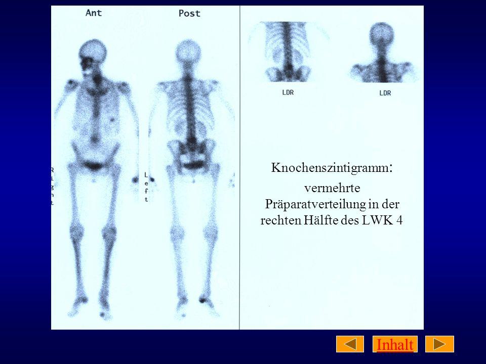 Inhalt Knochenszintigramm : vermehrte Präparatverteilung in der rechten Hälfte des LWK 4