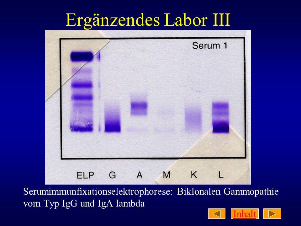 Inhalt Ergänzendes Labor III Serumimmunfixationselektrophorese: Biklonalen Gammopathie vom Typ IgG und IgA lambda