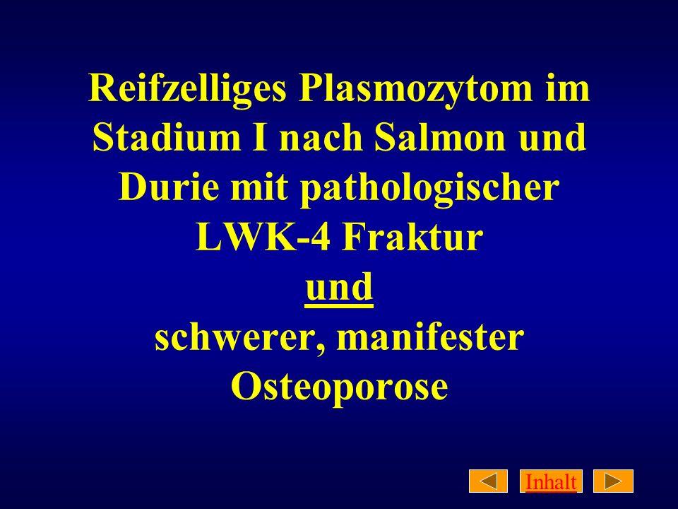 Inhalt Reifzelliges Plasmozytom im Stadium I nach Salmon und Durie mit pathologischer LWK-4 Fraktur und schwerer, manifester Osteoporose