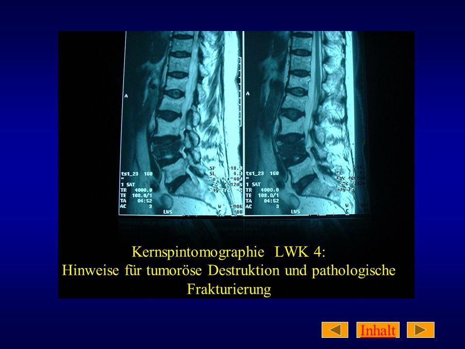 Inhalt Klinischer Untersuchungsbefund: 73jährige Patientin in normalem AZ und leicht adipösem EZ (168 cm, 74 kg) Klopf- und Bewegungsschmerz im Lumbalbereich Muskelhartspann paravertebral Leichtes Tannenbaumphänomen