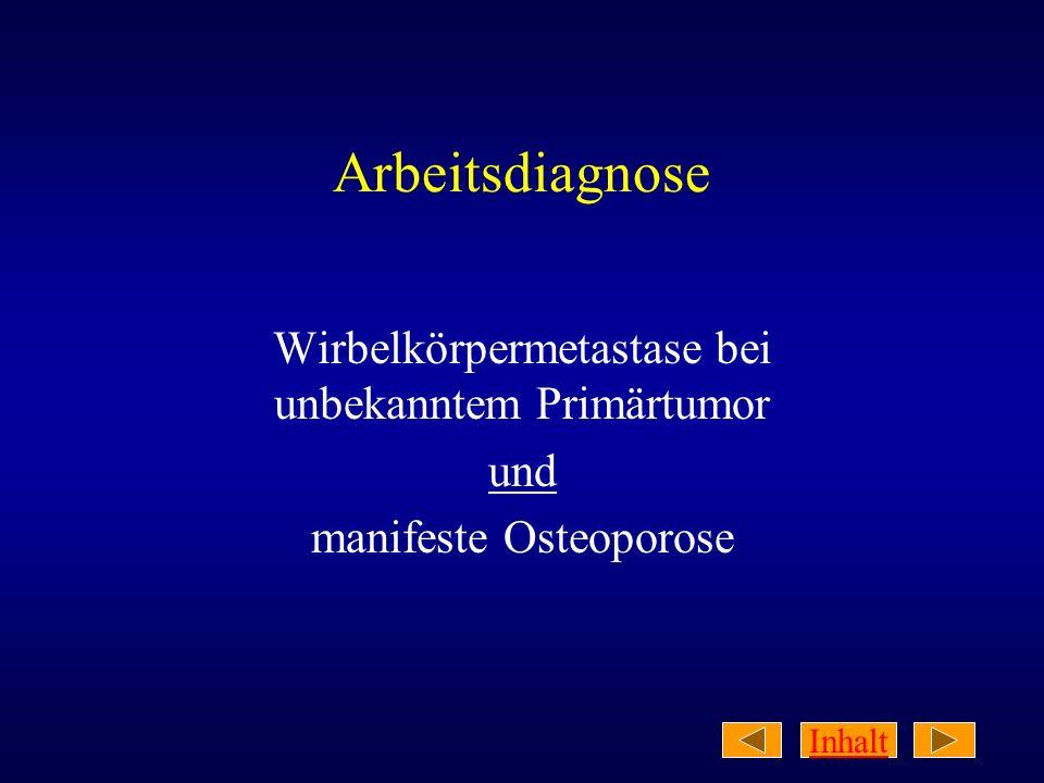 Inhalt Arbeitsdiagnose Wirbelkörpermetastase bei unbekanntem Primärtumor und manifeste Osteoporose