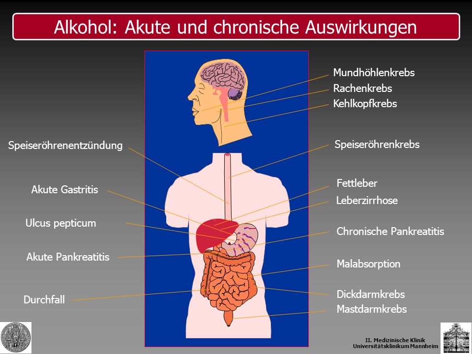 Speiseröhrenkrebs Fettleber Chronische Pankreatitis Malabsorption Dickdarmkrebs Speiseröhrenentzündung Akute Gastritis Ulcus pepticum Akute Pankreatit