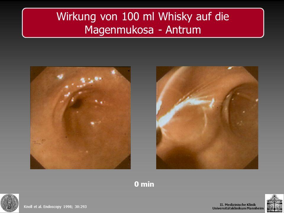 0 min Knoll et al. Endoscopy 1998; 30:293 II. Medizinische Klinik Universitätsklinikum Mannheim Wirkung von 100 ml Whisky auf die Magenmukosa - Antrum