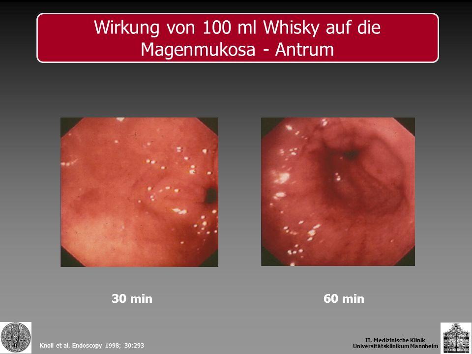 30 min60 min Knoll et al. Endoscopy 1998; 30:293 II. Medizinische Klinik Universitätsklinikum Mannheim Wirkung von 100 ml Whisky auf die Magenmukosa -