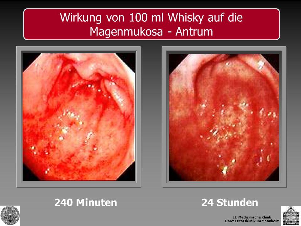 II. Medizinische Klinik Universitätsklinikum Mannheim 240 Minuten24 Stunden Wirkung von 100 ml Whisky auf die Magenmukosa - Antrum