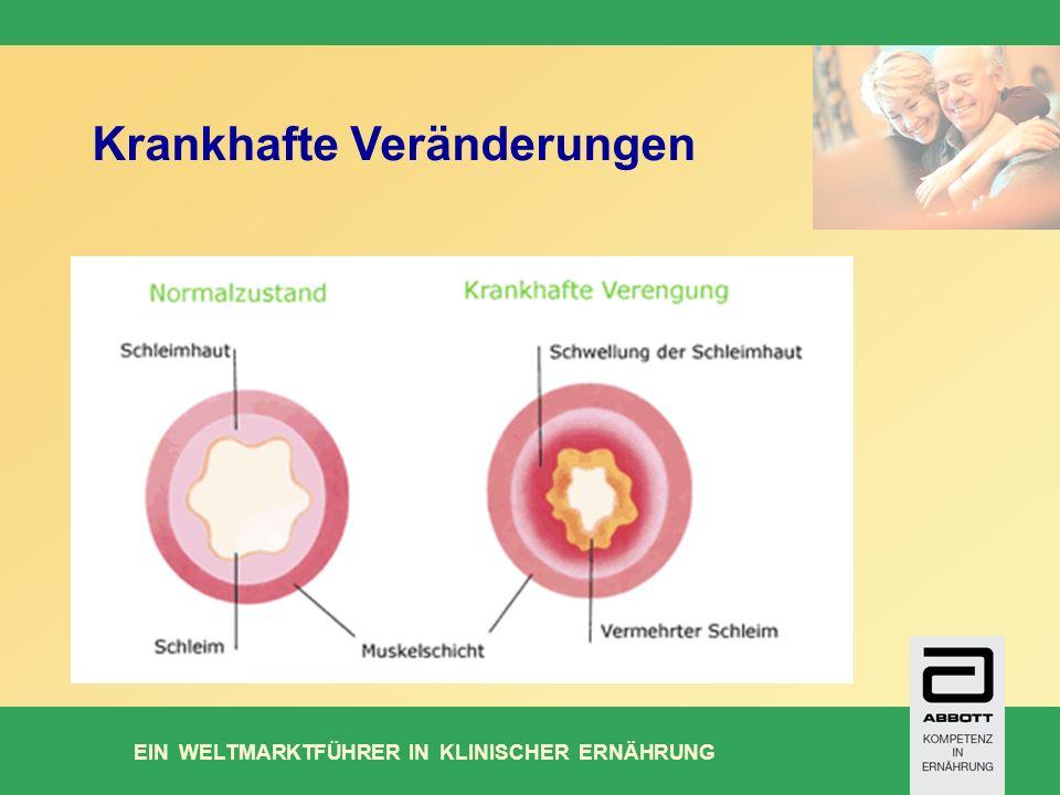 EIN WELTMARKTFÜHRER IN KLINISCHER ERNÄHRUNG Krankhafte Veränderungen