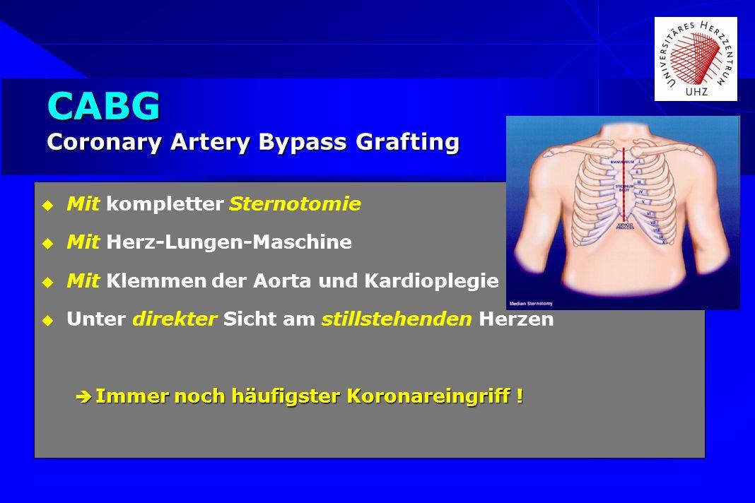 CABG Coronary Artery Bypass Grafting Mit kompletter Sternotomie Mit Herz-Lungen-Maschine Mit Klemmen der Aorta und Kardioplegie Unter direkter Sicht a