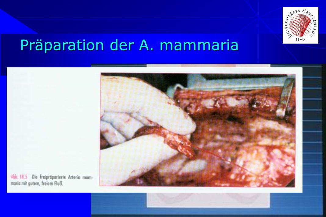 Präparation der A. mammaria