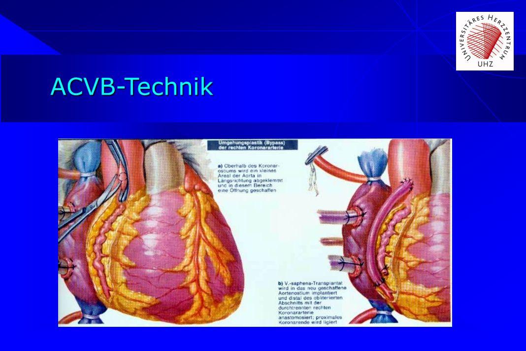 ACVB-Technik