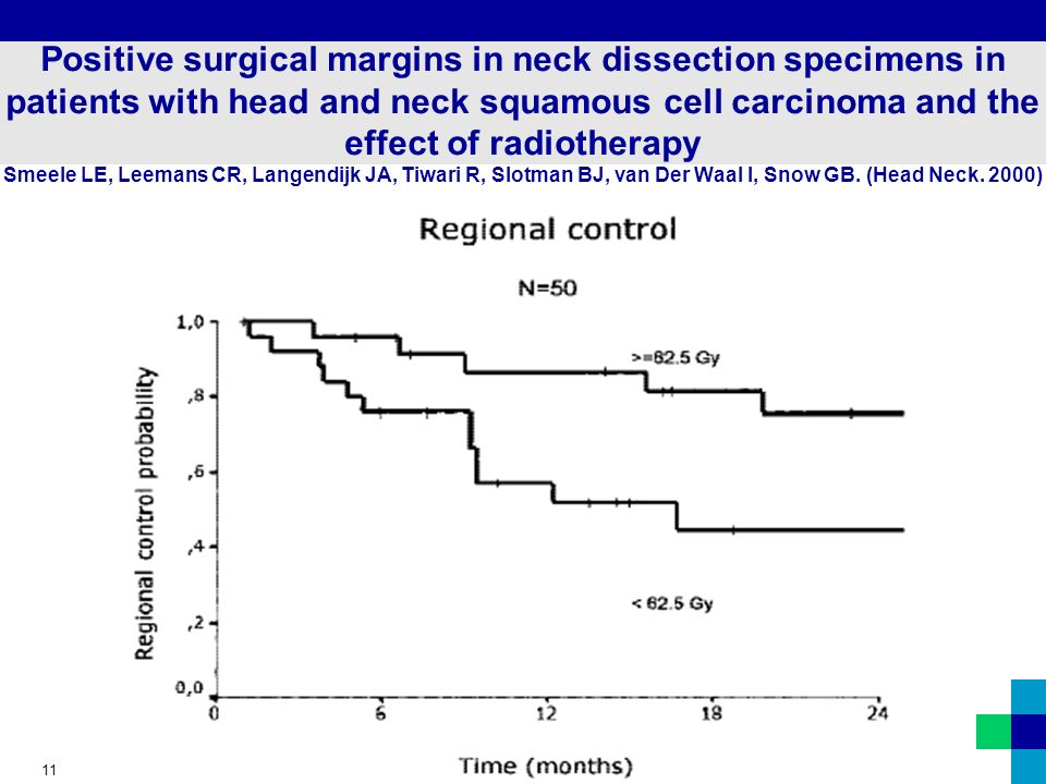 11 Positive surgical margins in neck dissection specimens in patients with head and neck squamous cell carcinoma and the effect of radiotherapy Smeele