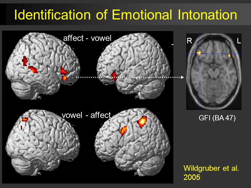 RL affect - vowel vowel - affect GFI (BA 47) RL Identification of Emotional Intonation Wildgruber et al.