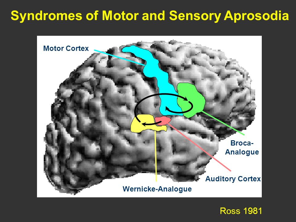 motorischer Kortex Broca- Analogo n Ross 1981 Motor Cortex Syndromes of Motor and Sensory Aprosodia Broca- Analogue Wernicke-Analogue Auditory Cortex