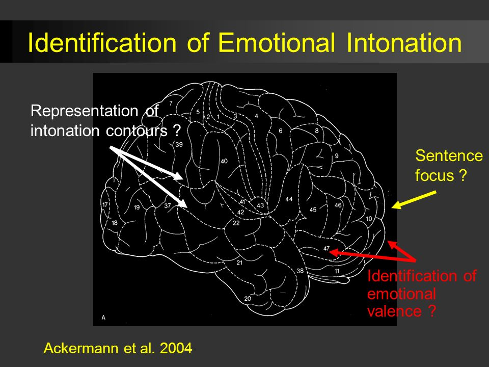 Representation of intonation contours .Identification of emotional valence .