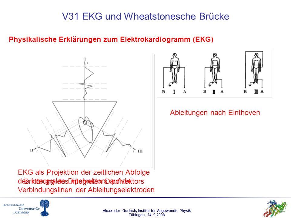 Alexander Gerlach, Institut für Angewandte Physik Tübingen, 24. 9.2008 V31 EKG und Wheatstonesche Brücke Physikalische Erklärungen zum Elektrokardiogr
