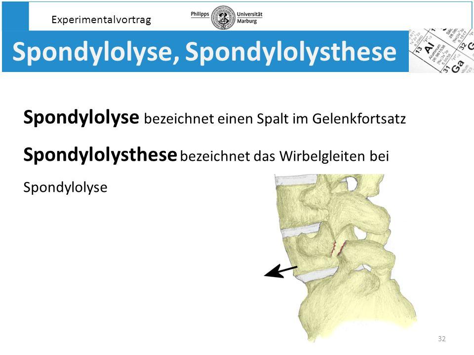 32 Spondylolyse, Spondylolysthese Spondylolyse bezeichnet einen Spalt im Gelenkfortsatz Spondylolysthese bezeichnet das Wirbelgleiten bei Spondylolyse