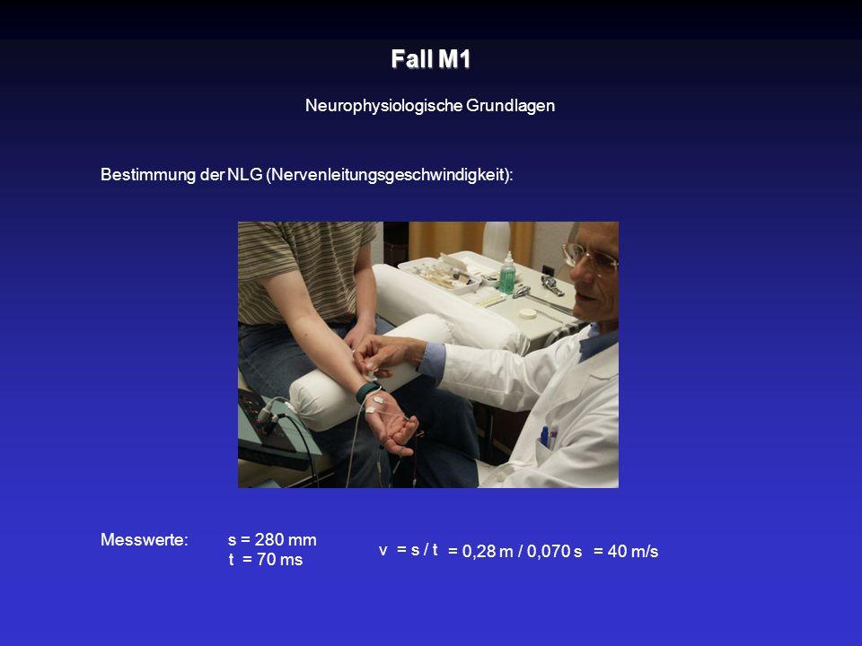 Fall M1 Neurophysiologische Grundlagen Bestimmung der NLG (Nervenleitungsgeschwindigkeit): Messwerte:s = 280 mm t = 70 ms v = s / t = 0,28 m / 0,070 s