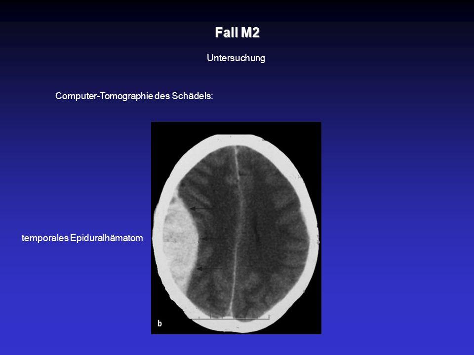 Fall M2 Untersuchung Computer-Tomographie des Schädels: temporales Epiduralhämatom