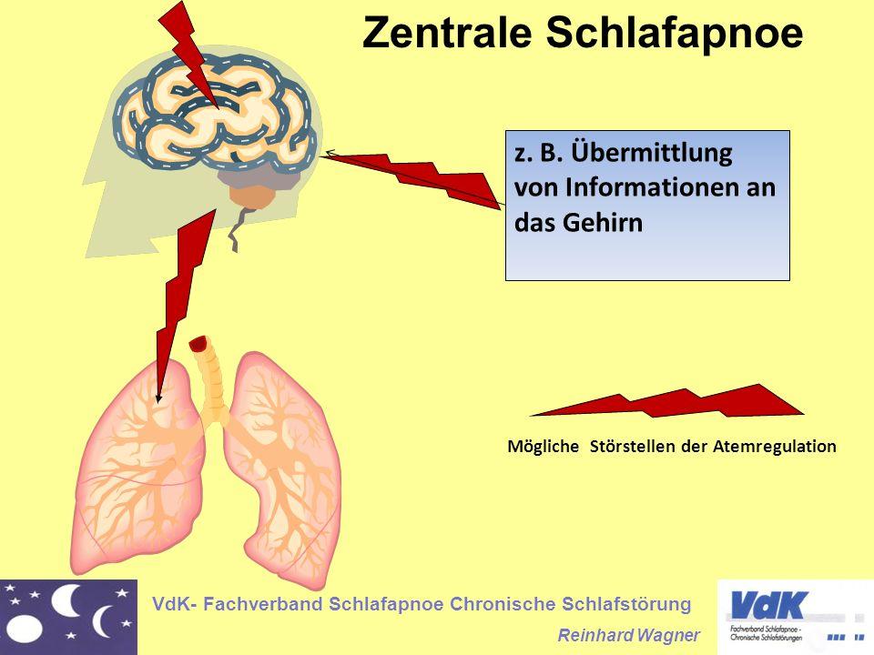 VdK- Fachverband Schlafapnoe Chronische Schlafstörung Reinhard Wagner Zentrale Schlafapnoe z. B. Übermittlung von Informationen an das Gehirn Mögliche
