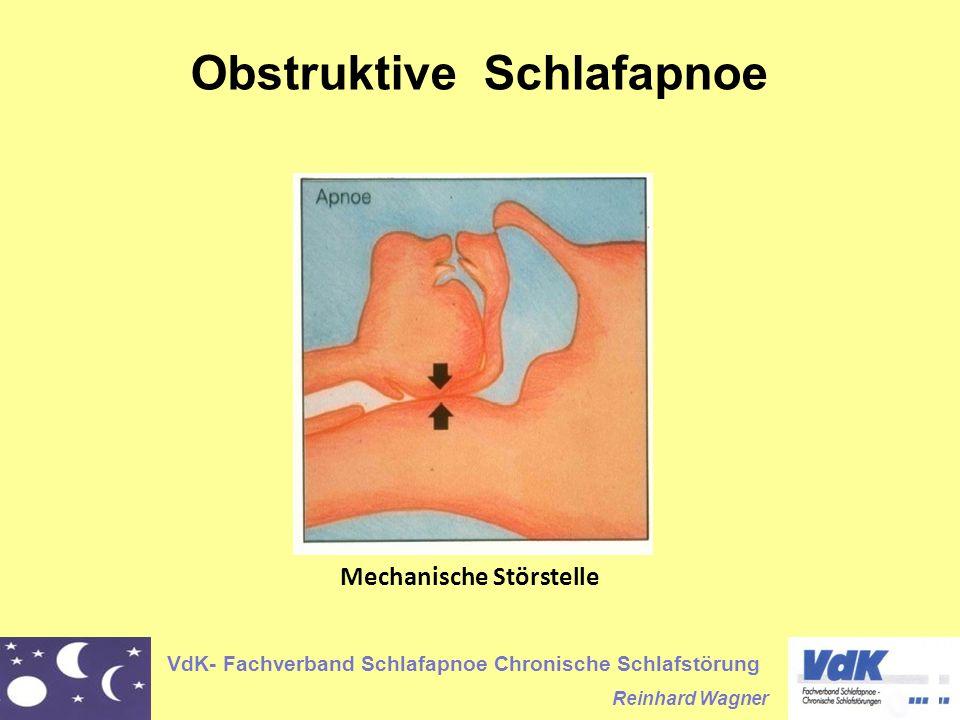 VdK- Fachverband Schlafapnoe Chronische Schlafstörung Reinhard Wagner Obstruktive Schlafapnoe Mechanische Störstelle