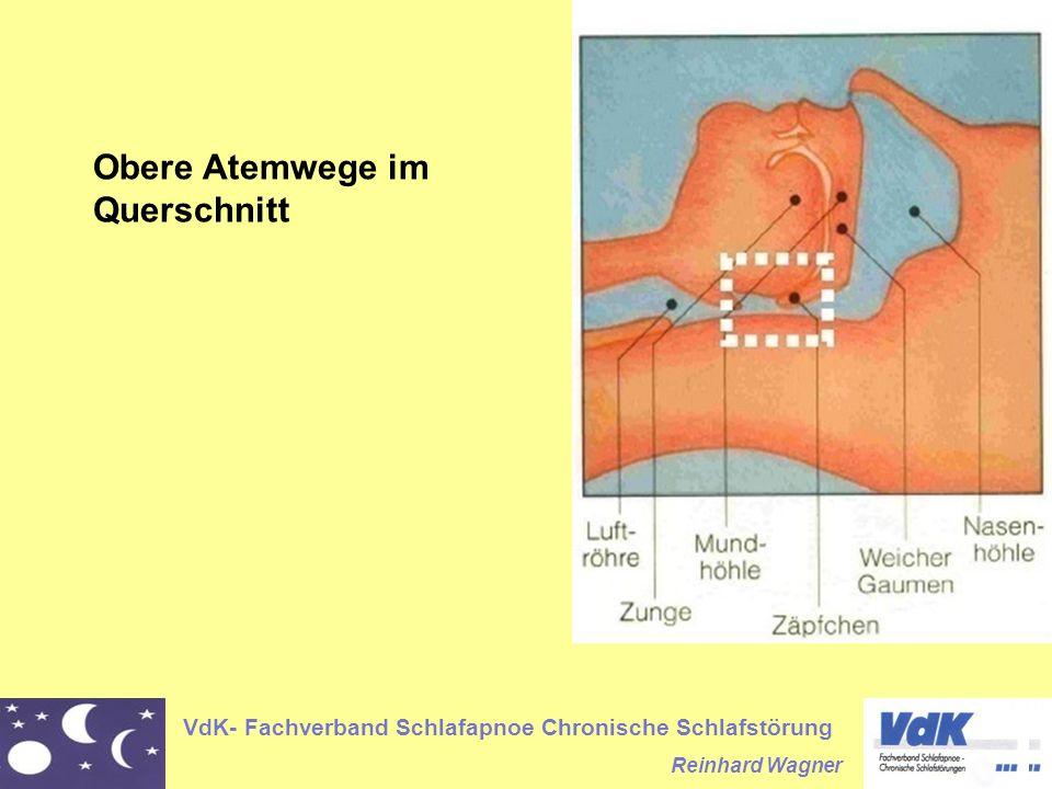 VdK- Fachverband Schlafapnoe Chronische Schlafstörung Reinhard Wagner Obere Atemwege im Querschnitt