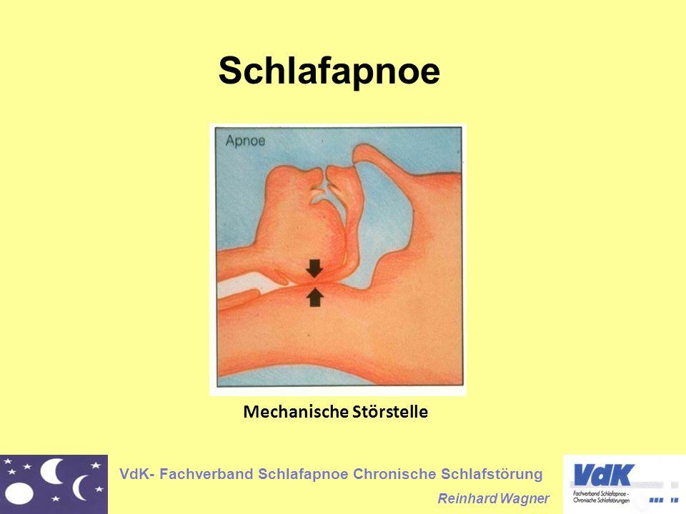 VdK- Fachverband Schlafapnoe Chronische Schlafstörung Reinhard Wagner Schlafapnoe Mechanische Störstelle