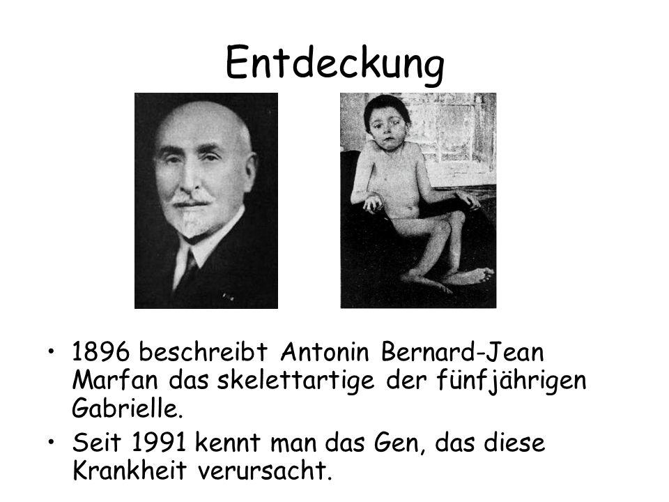 Entdeckung 1896 beschreibt Antonin Bernard-Jean Marfan das skelettartige der fünfjährigen Gabrielle. Seit 1991 kennt man das Gen, das diese Krankheit