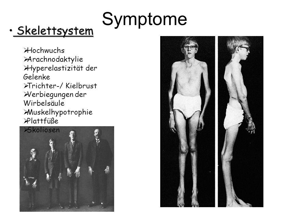 Skelettsystem Skelettsystem Hochwuchs Arachnodaktylie Hyperelastizität der Gelenke Trichter-/ Kielbrust Verbiegungen der Wirbelsäule Muskelhypotrophie