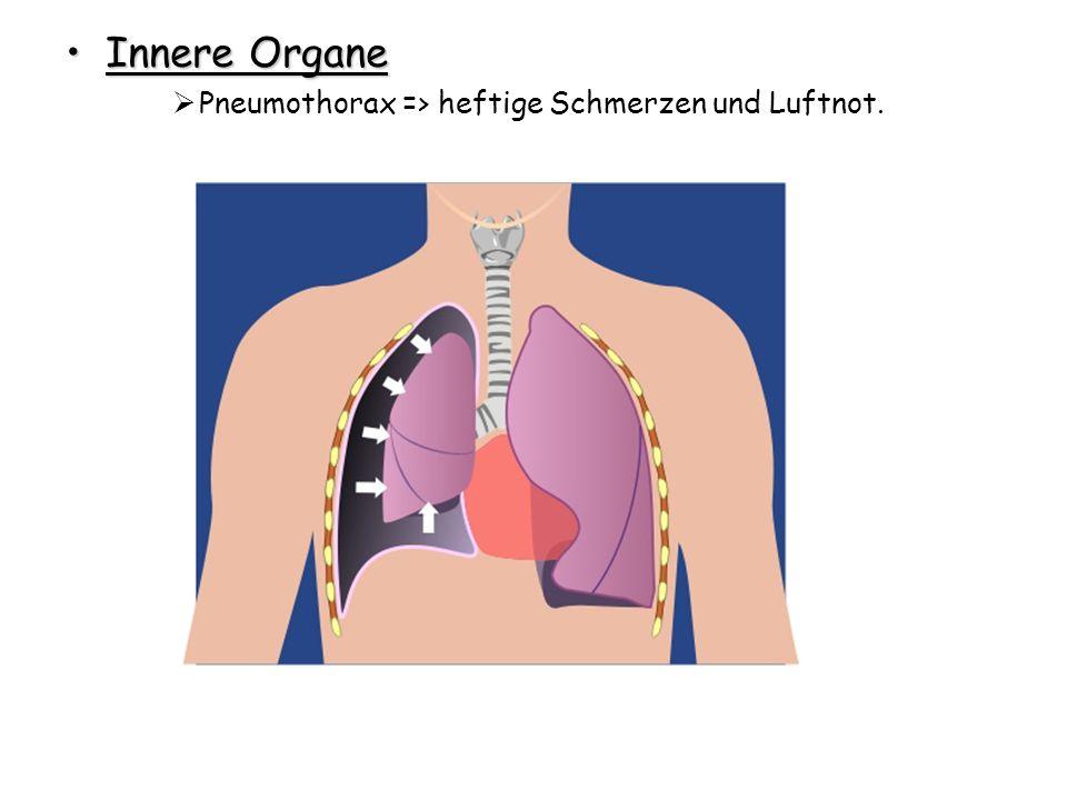 Innere OrganeInnere Organe Pneumothorax => heftige Schmerzen und Luftnot.