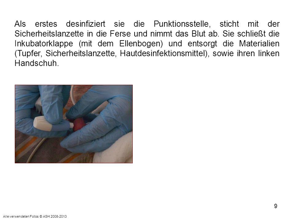 9 Als erstes desinfiziert sie die Punktionsstelle, sticht mit der Sicherheitslanzette in die Ferse und nimmt das Blut ab. Sie schließt die Inkubatorkl