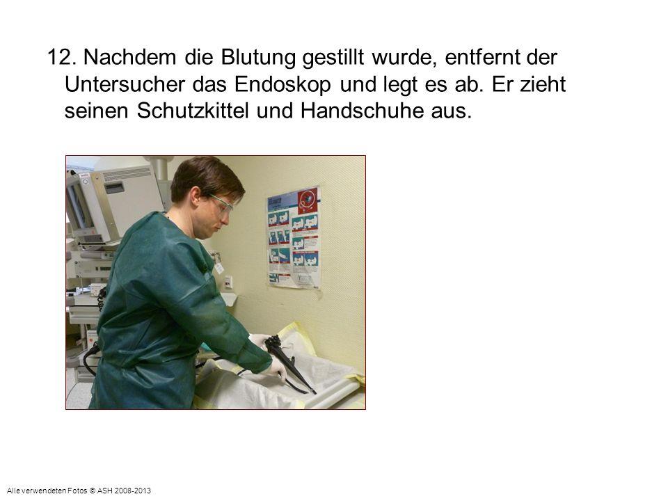 12. Nachdem die Blutung gestillt wurde, entfernt der Untersucher das Endoskop und legt es ab. Er zieht seinen Schutzkittel und Handschuhe aus. Alle ve