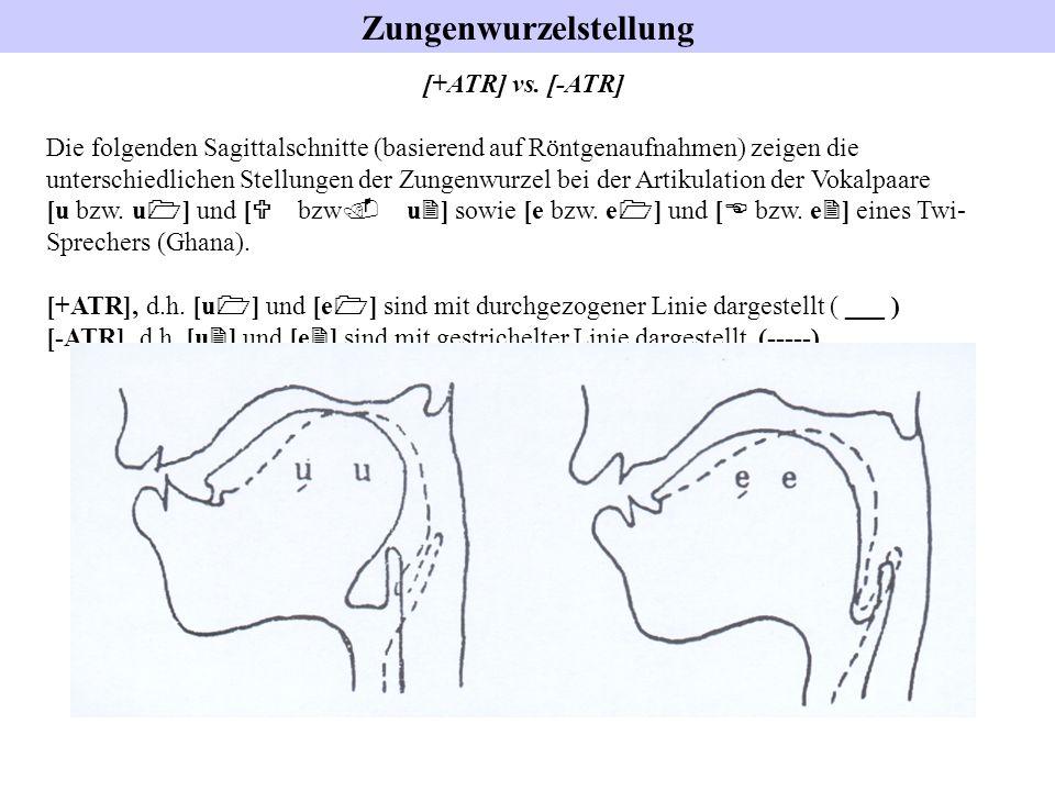 Zungenwurzelstellung [+ATR] vs. [-ATR] Die folgenden Sagittalschnitte (basierend auf Röntgenaufnahmen) zeigen die unterschiedlichen Stellungen der Zun