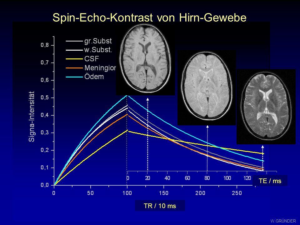 W.GRÜNDER Spin-Echo-Kontraste: Einfluß von TR und TE mit Berücksichtigung der PD TR TE T1-Relaxation T2- Relax, Signal