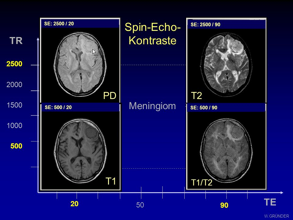 W.GRÜNDER Spin-Echo-Kontraste TE TR 2500 2000 1500 1000 500 20 90 T2 T1 PD 50 SE: 2500/20 SE: 500/20 SE: 2500/90 SE: 500/90