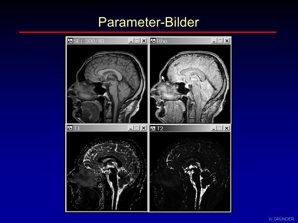 W.GRÜNDER Klinische Diagnostik: Meningiom T1-BildT2-Bild Parameter-Bilder T1T2