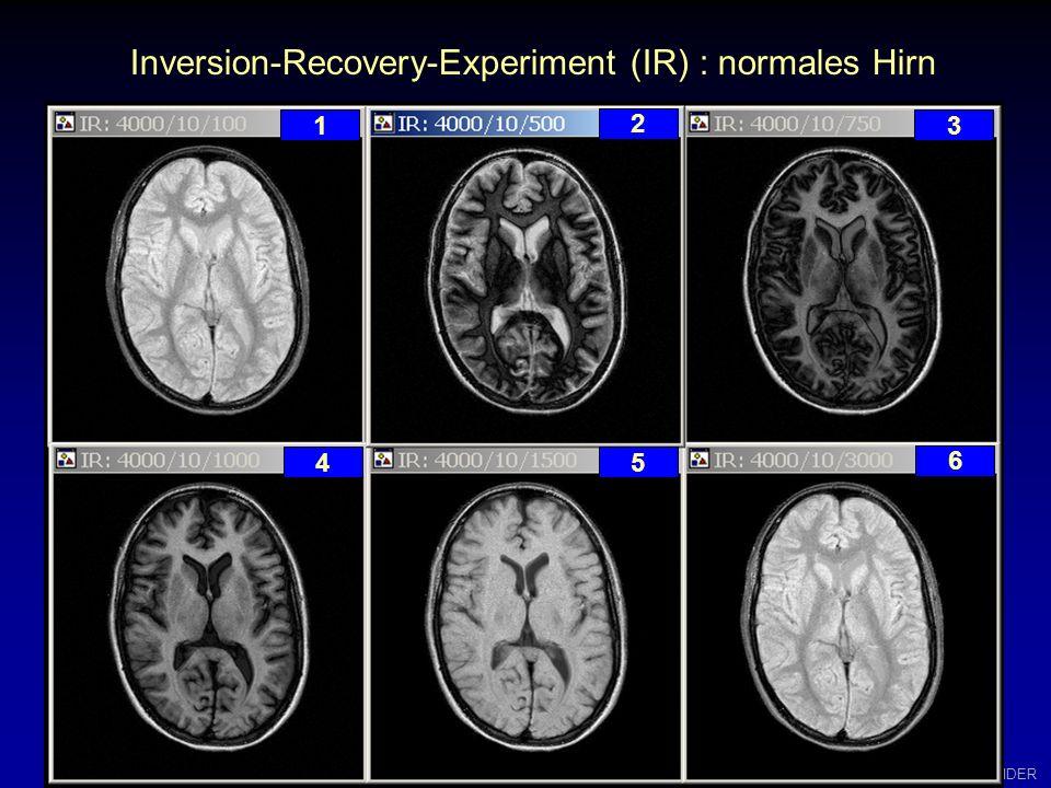 W.GRÜNDER Inversion-Recovery-Experiment (IR) ohne Berücksichtigung der Phase 1 2 3 4 5 6