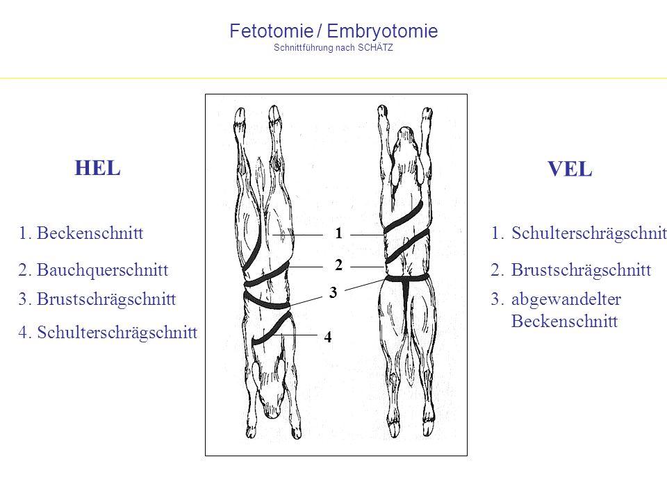 Fetotomie / Embryotomie Schnittführung nach SCHÄTZ VEL HEL 4 4. Schulterschrägschnitt 1 1. Beckenschnitt1. Schulterschrägschnitt 2 2. Bauchquerschnitt