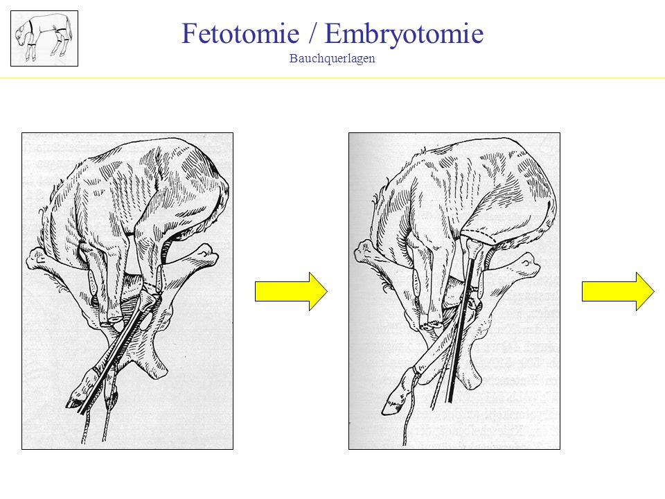 Fetotomie / Embryotomie Bauchquerlagen