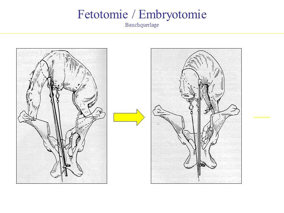 Fetotomie / Embryotomie Bauchquerlage........
