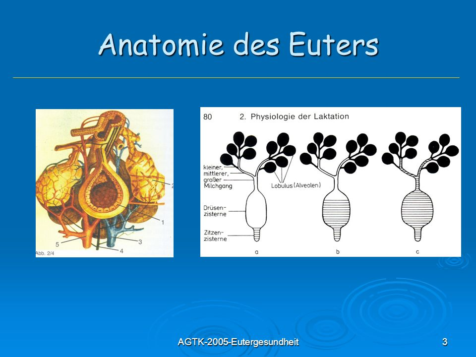 AGTK-2005-Eutergesundheit44 Granulomatöse Mastitis mit Drusenbildung Druse: Bakterienkolonien in Protein- Polysaccharidmatrix, im Inneren eines Granuloms Druse: Bakterienkolonien in Protein- Polysaccharidmatrix, im Inneren eines Granuloms Besondere Form chronischer S.