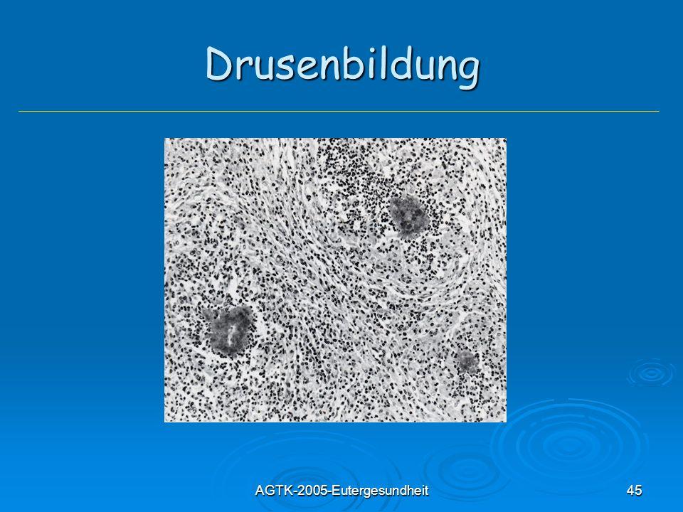 AGTK-2005-Eutergesundheit45 Drusenbildung
