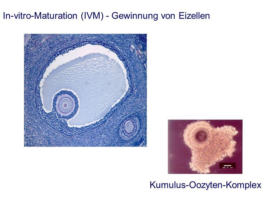 In-vitro-Maturation (IVM) - Gewinnung von Eizellen Kumulus-Oozyten-Komplex