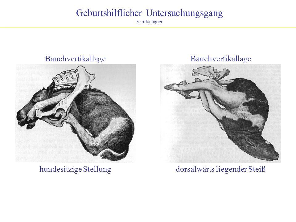 Geburtshilflicher Untersuchungsgang Vertikallagen Bauchvertikallage hundesitzige Stellungdorsalwärts liegender Steiß