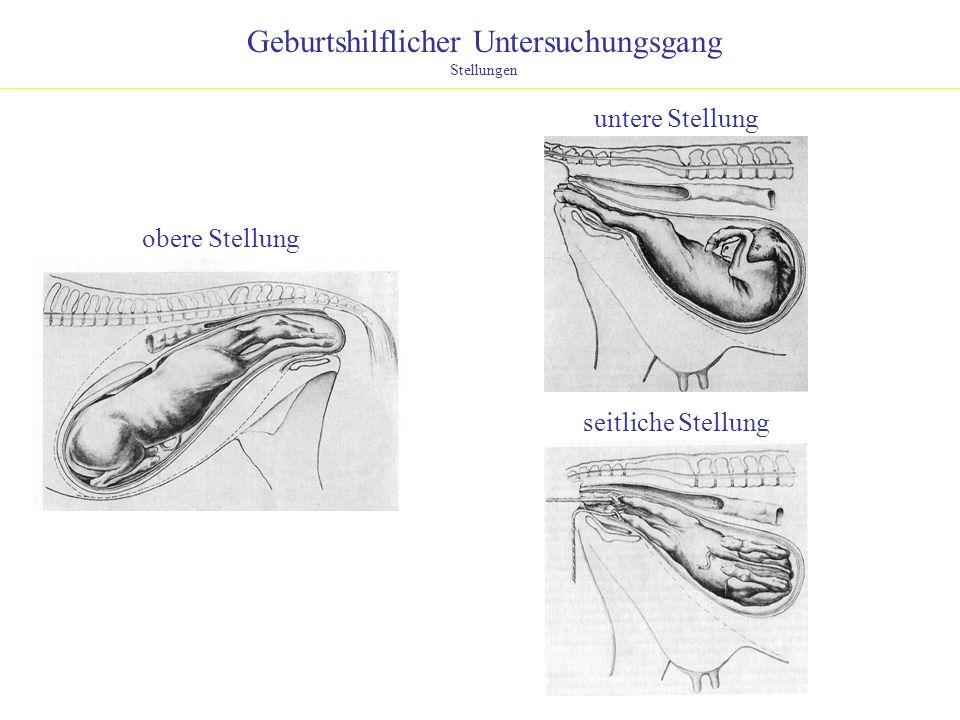 Geburtshilflicher Untersuchungsgang Stellungen obere Stellung untere Stellung seitliche Stellung